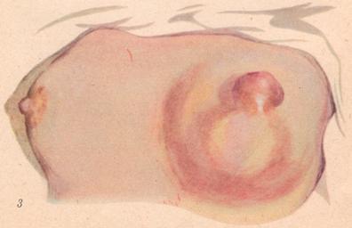 """Генерализованная послеродовая инфекция: общий перитонит; септицемия; септикопиемия; пиемия; послеродовые тромбофлебиты """" Медицин"""