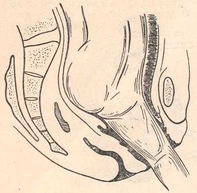 masturbatsiya-pri-predlezhanii-platsenti
