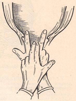 раскрытие шейки матки на 2 пальца фото